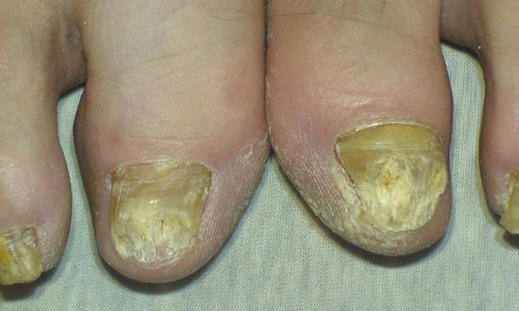 nail fungus infection